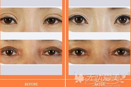 沧州枫华整形双眼皮修复案例