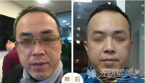 北京丽都面部提升前后对比案例