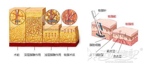 菏泽华美大腿吸脂手术原理