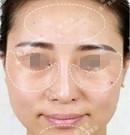 我在石家庄雅芳亚找吴小玉主任做皮秒祛斑治疗全过程术前