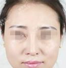 我在石家庄雅芳亚找吴小玉主任做皮秒祛斑治疗全过程术后