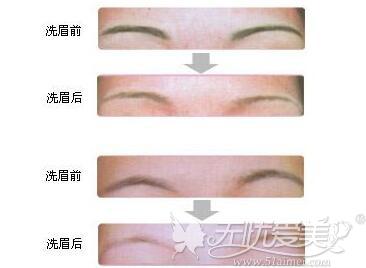 激光洗眉过程事例