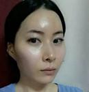 在韩国新帝瑞娜做了颧骨内推后 脸型变得有型又精致术前