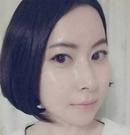 在韩国新帝瑞娜做了颧骨内推后 脸型变得有型又精致术后
