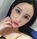 上海华美李健全面部脂肪填充整形案例,术后45天对比照片!