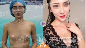 郑州集美假体丰胸前后对比案例