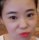 长沙雅美真人鼻整形案例:别让丑鼻毁了整张脸术前