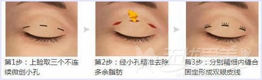 上海九院韩式双眼皮