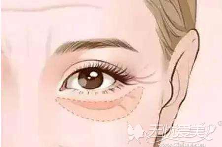 眼袋会使人显老