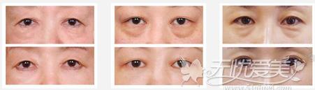 桂林时光自然无痕V-STAR祛眼袋案例