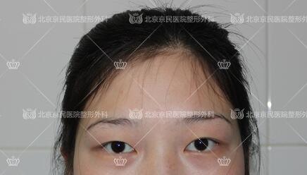 在北京京民做全切双眼皮整形手术前