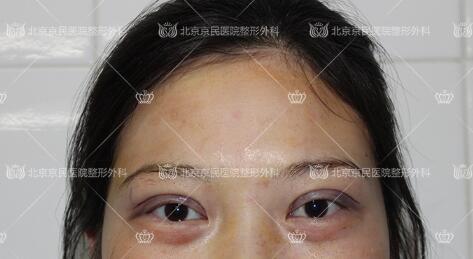 在北京京民做全切双眼皮整形手术后
