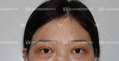在北京京民做全切双眼皮整形手术后5天