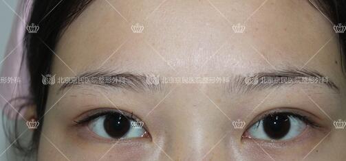 在北京京民做全切双眼皮整形手术后1个月