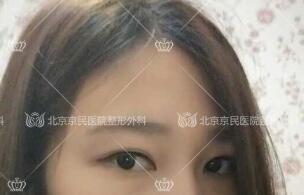 在北京京民做全切双眼皮整形手术后45天