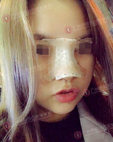 在广州伊丽莎白做假体隆鼻后第1天