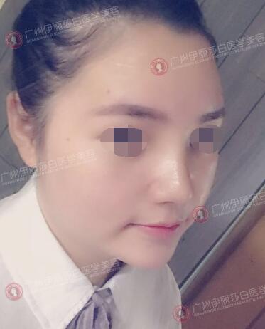 在广州伊丽莎白做假体隆鼻后第7天
