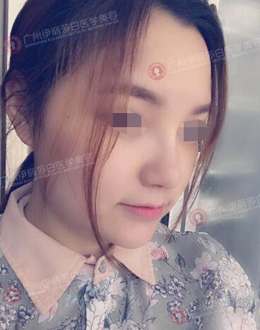 在广州伊丽莎白做假体隆鼻后第10天