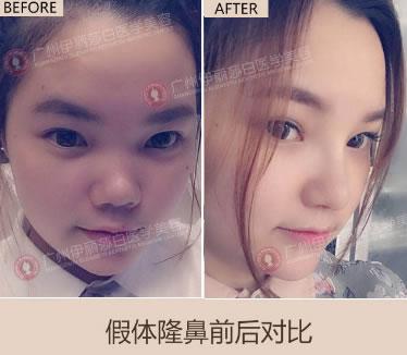 在广州伊丽莎白做假体隆鼻前后对比图