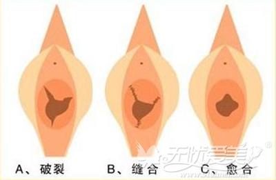 福州台江处女膜修复手术效果