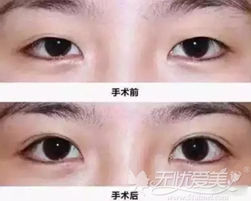 北京亚馨美莱坞双眼皮手术案例