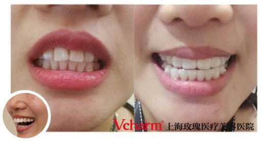 上海玫瑰隐形矫正,看得见的笑容,看不见的矫正
