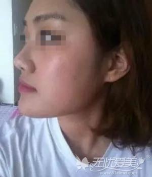 我在北京亚馨美莱坞做隆鼻+磨骨瘦脸前