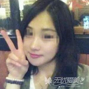 我在北京亚馨美莱坞做隆鼻+磨骨瘦脸手术后3个月