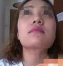 在北京亚馨美莱坞做隆鼻+磨骨瘦脸 摆脱了我的塌鼻、大饼脸