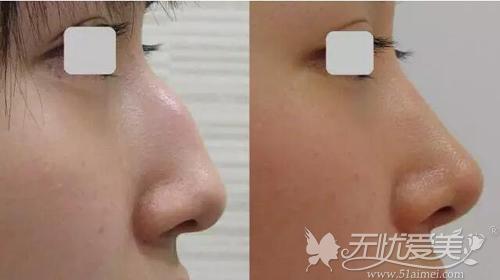 咸贞旭医生驼峰鼻矫正案例