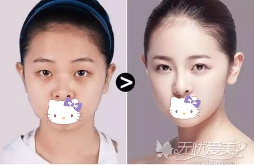 眼鼻综合整形案例