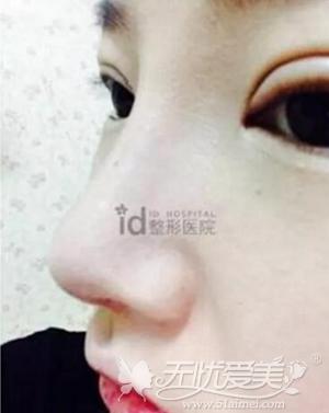 我在韩国ID医院黄仁锡院长做双眼皮+假体隆鼻手术后10天