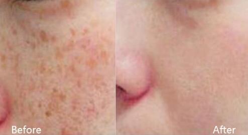 汕头华美复合彩光嫩肤清除面部色斑效果案例图