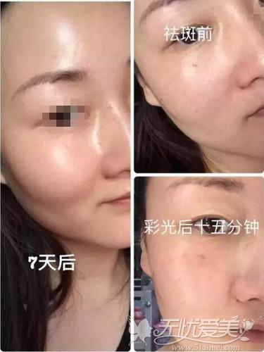 佛山苏李秀英激光祛斑案例