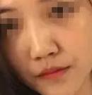 妹子在烟台美神整形做鼻综合改变鼻部缺陷 圆梦高挺美鼻