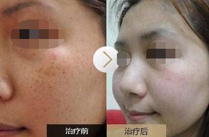 重庆华美激光祛斑整形案例