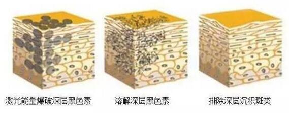 重庆华美激光祛斑原理