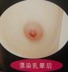 乳晕漂红术后有没有疤痕和手术方法相关