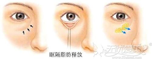 眶隔脂肪转移法去眼袋