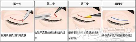 切开双眼皮手术过程