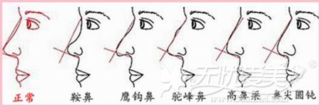 天津欧菲隆鼻手术怎么样?哪种隆鼻术好?