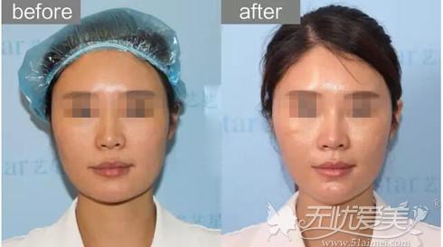 面部埋线提升前后对比案例