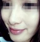 宝妈花2万8在北京当代整形做超声刀除皱