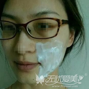 北京当代超声刀除皱术前