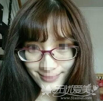 北京当代超声刀除皱真人案例