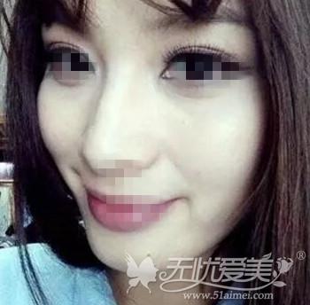 北京当代超声刀除皱术后效果