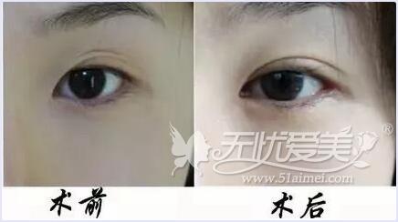 临沂伊维美双眼皮手案例