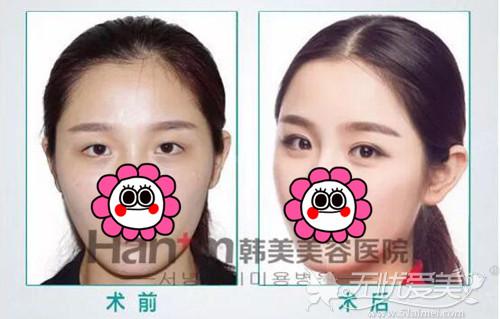 韩国芭比电眼术前后对比案例