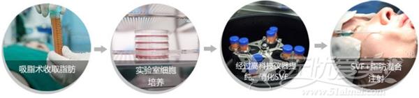 北京丽都SVF自体脂肪面部填充过程