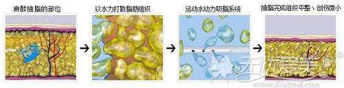 水动力吸脂作用原理